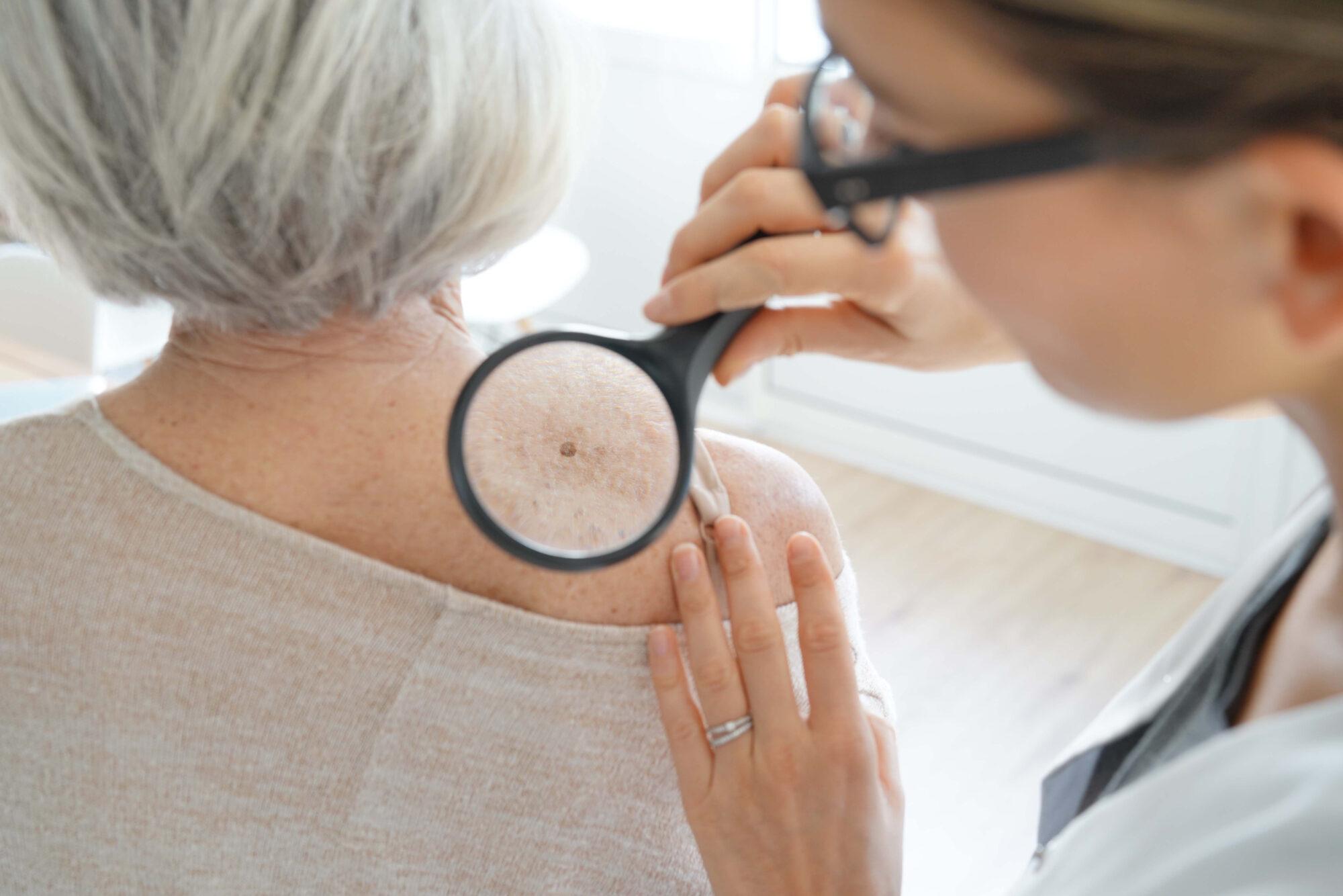 Huidkankerweek: 'Check je huid op verdachte plekjes'