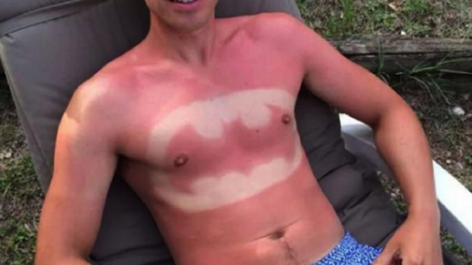 'Ouders onderschatten risico zon voor kinderen'