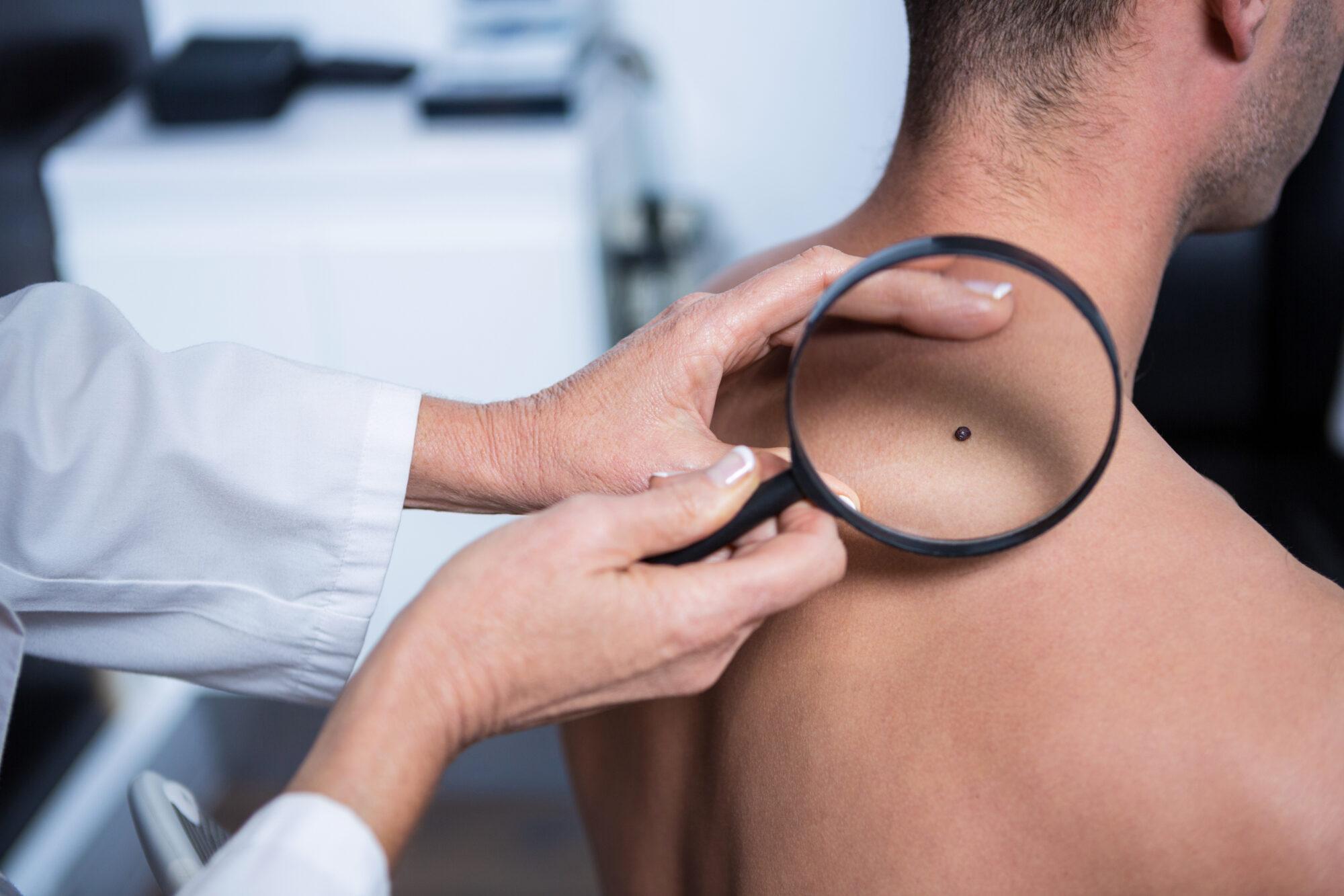 'We moeten meer smeren, vaker de huid checken en sneller naar de dokter'