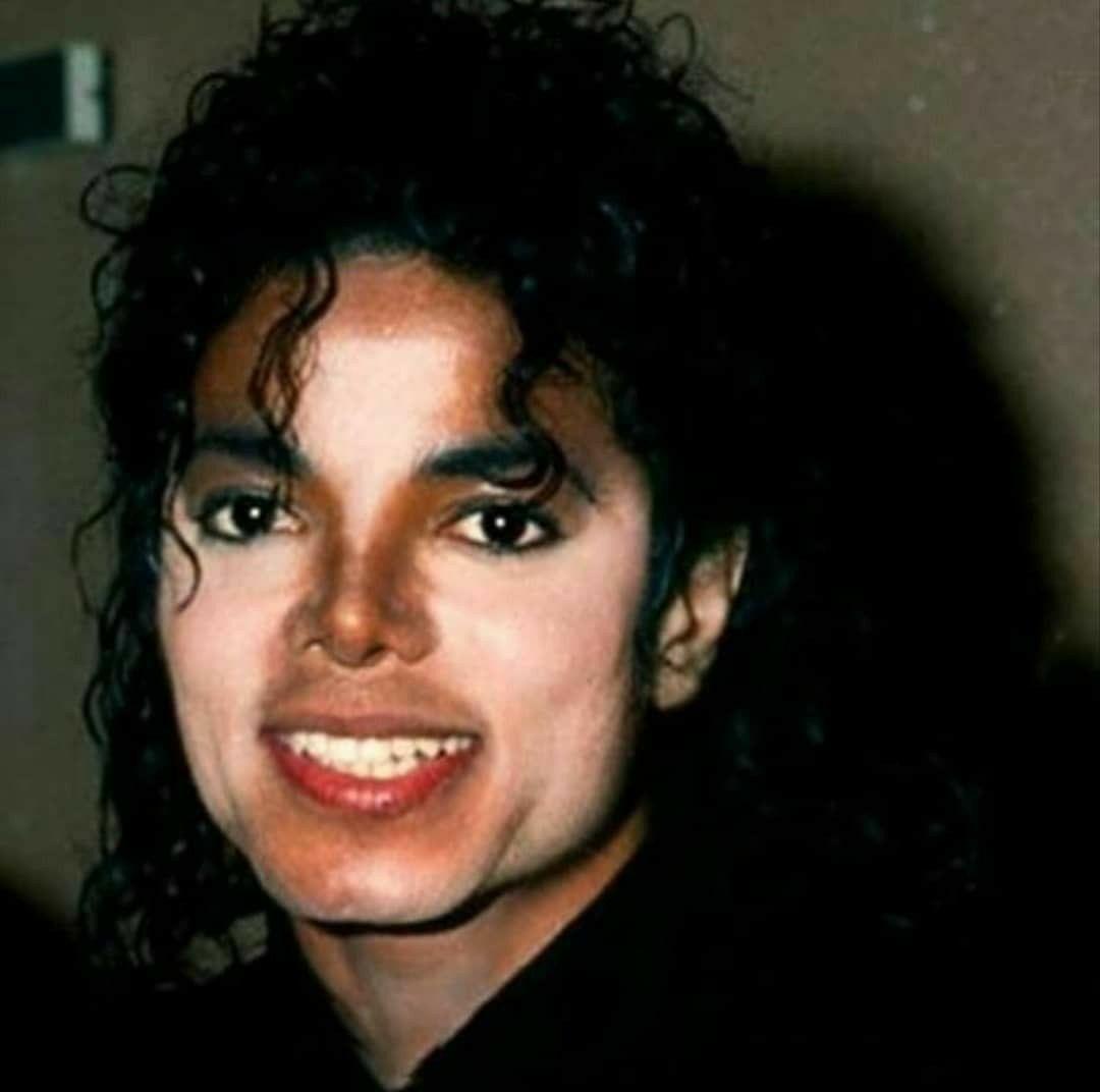Wereld Vitiligodag: elf jaar na het overlijden van Michael Jackson